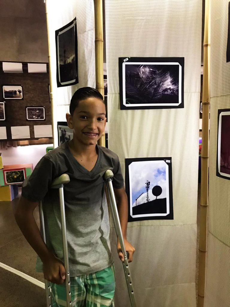 Kawã Gomes posa para foto ao lado de estande de fotografias. Ele apoia os braços em duas muletas. Fim da descrição.